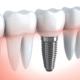 implantologia-dentale